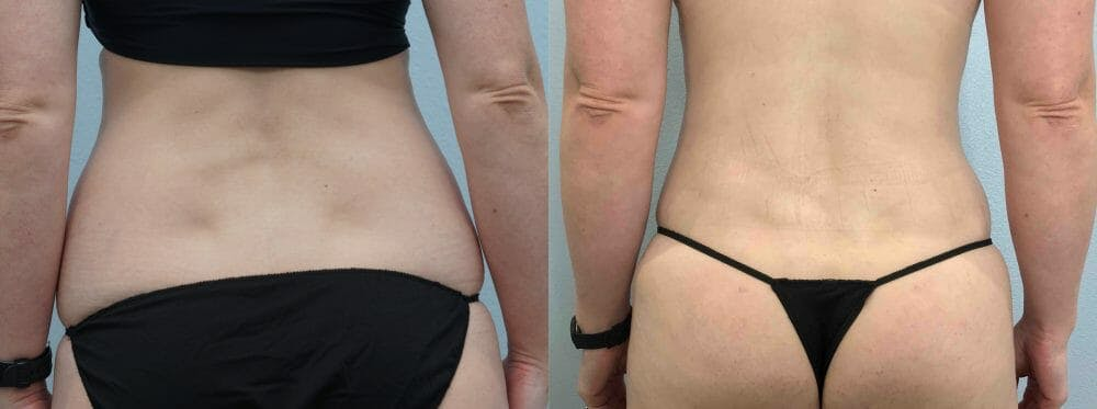Tummy Tuck Gallery - Patient 49149928 - Image 2