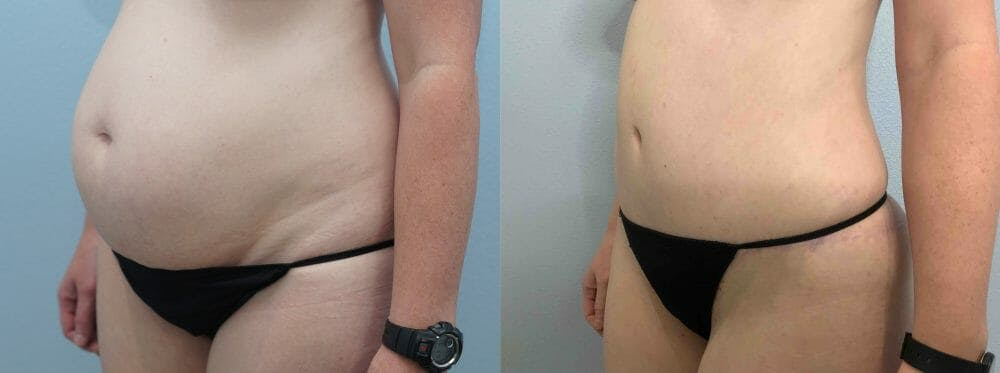 Tummy Tuck Gallery - Patient 49149928 - Image 3