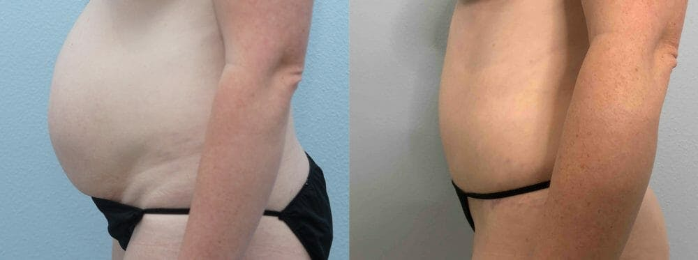Tummy Tuck Gallery - Patient 49149928 - Image 4
