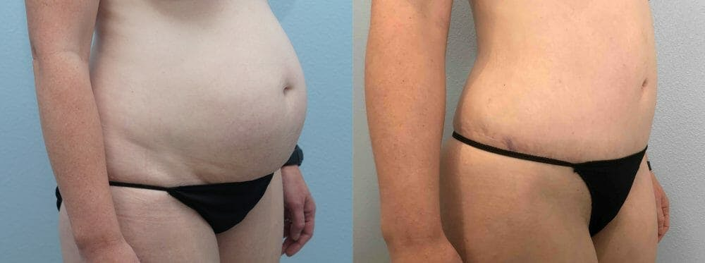 Tummy Tuck Gallery - Patient 49149928 - Image 5