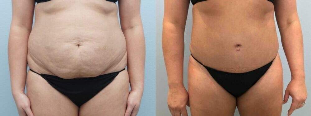 Tummy Tuck Gallery - Patient 49149930 - Image 1