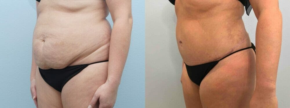 Tummy Tuck Gallery - Patient 49149930 - Image 2