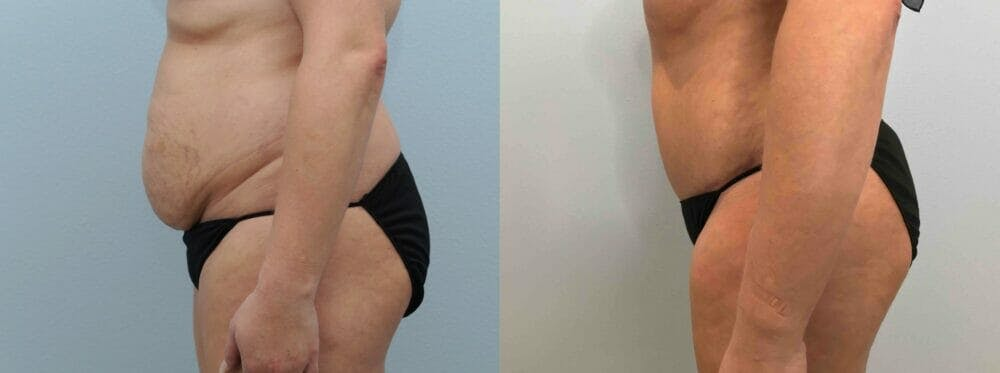 Tummy Tuck Gallery - Patient 49149930 - Image 3