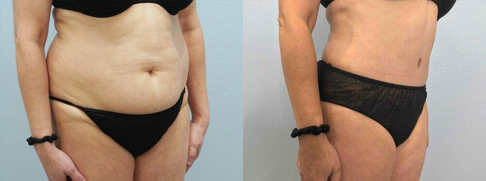 Tummy Tuck Gallery - Patient 49149930 - Image 4