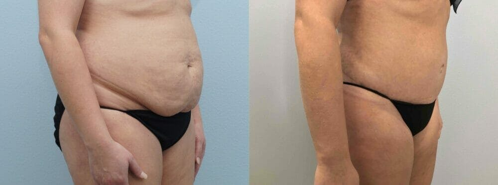 Tummy Tuck Gallery - Patient 49149930 - Image 5