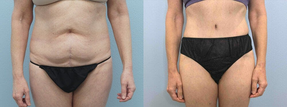 Tummy Tuck Gallery - Patient 49149934 - Image 1