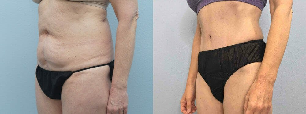 Tummy Tuck Gallery - Patient 49149934 - Image 2