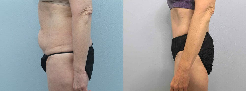 Tummy Tuck Gallery - Patient 49149934 - Image 3