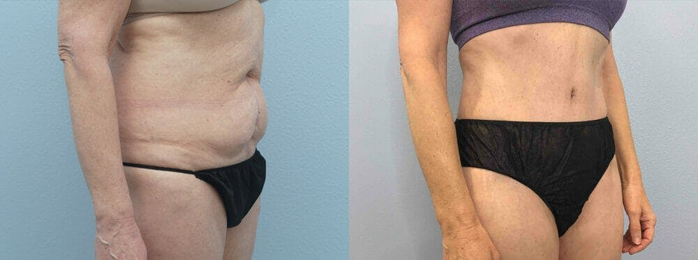 Tummy Tuck Gallery - Patient 49149934 - Image 4