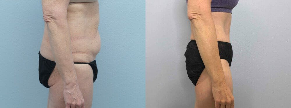 Tummy Tuck Gallery - Patient 49149934 - Image 5