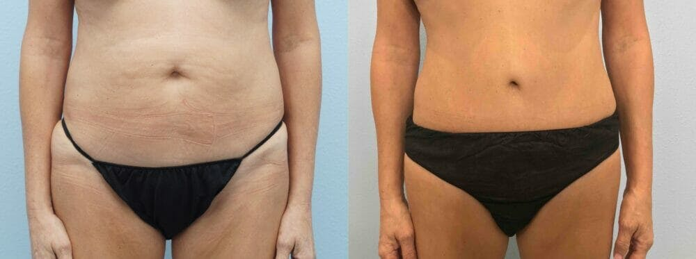 Tummy Tuck Gallery - Patient 49149938 - Image 1