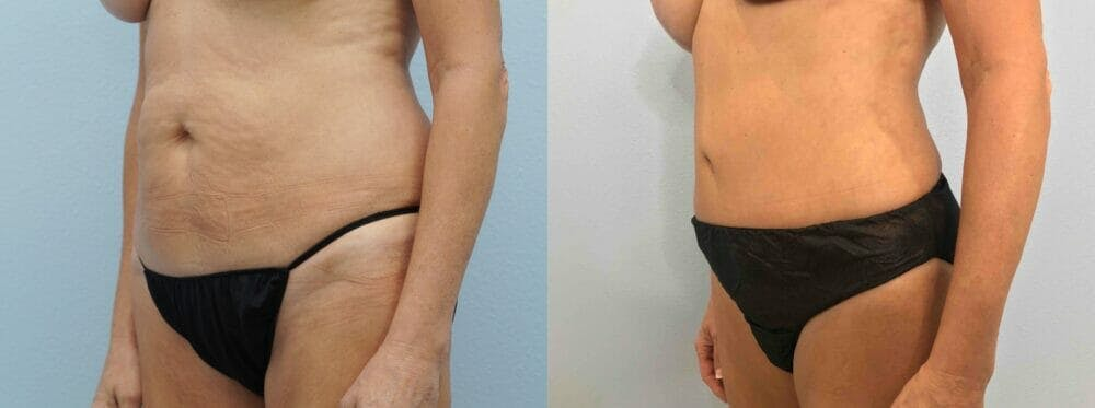 Tummy Tuck Gallery - Patient 49149938 - Image 2