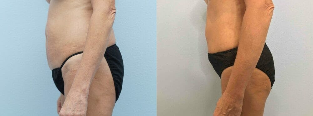 Tummy Tuck Gallery - Patient 49149938 - Image 3