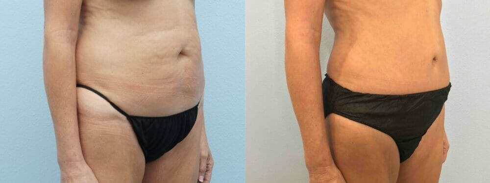 Tummy Tuck Gallery - Patient 49149938 - Image 4