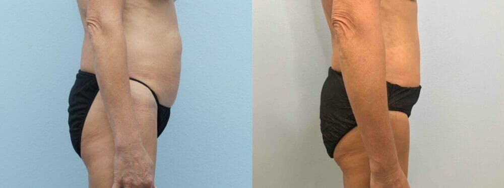 Tummy Tuck Gallery - Patient 49149938 - Image 5