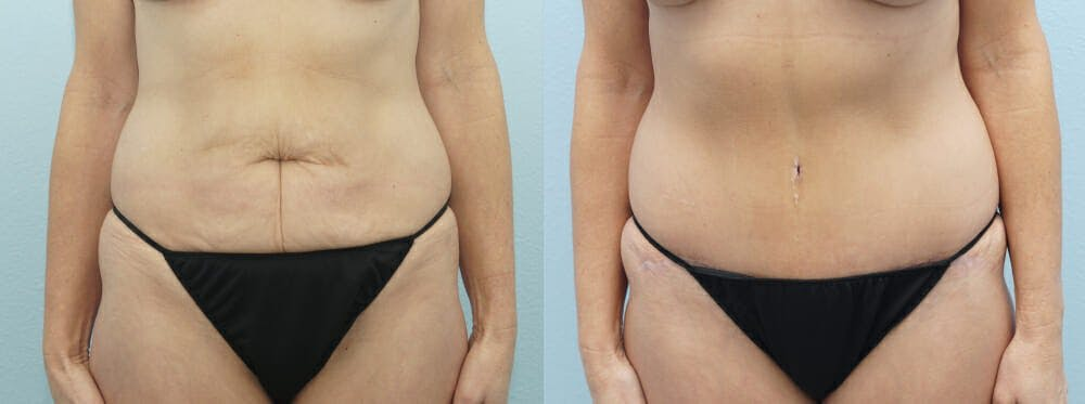 Tummy Tuck Gallery - Patient 49149995 - Image 1