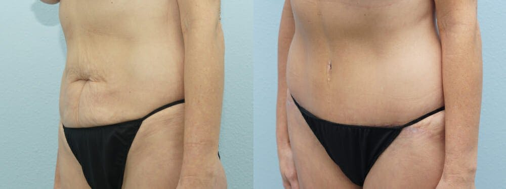 Tummy Tuck Gallery - Patient 49149995 - Image 2