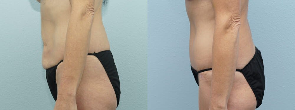 Tummy Tuck Gallery - Patient 49149995 - Image 3