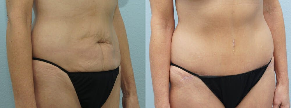 Tummy Tuck Gallery - Patient 49149995 - Image 4
