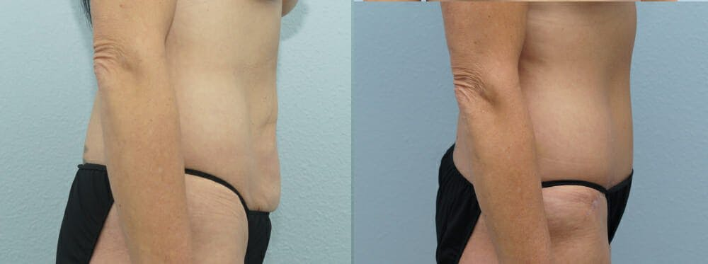 Tummy Tuck Gallery - Patient 49149995 - Image 5
