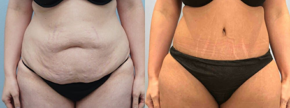 Tummy Tuck Gallery - Patient 49149996 - Image 1