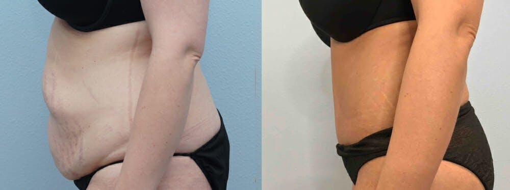 Tummy Tuck Gallery - Patient 49149996 - Image 3