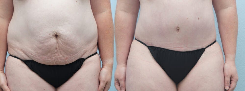 Tummy Tuck Gallery - Patient 49150054 - Image 1
