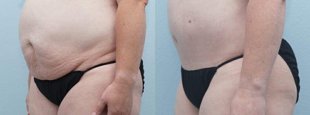 Tummy Tuck Gallery - Patient 49150054 - Image 2