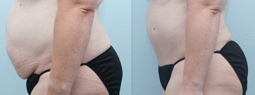 Tummy Tuck Gallery - Patient 49150054 - Image 3