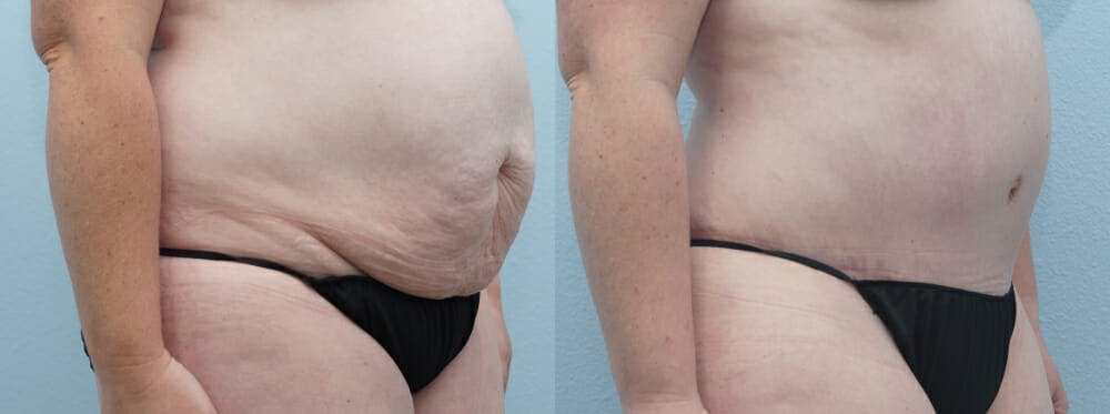 Tummy Tuck Gallery - Patient 49150054 - Image 4