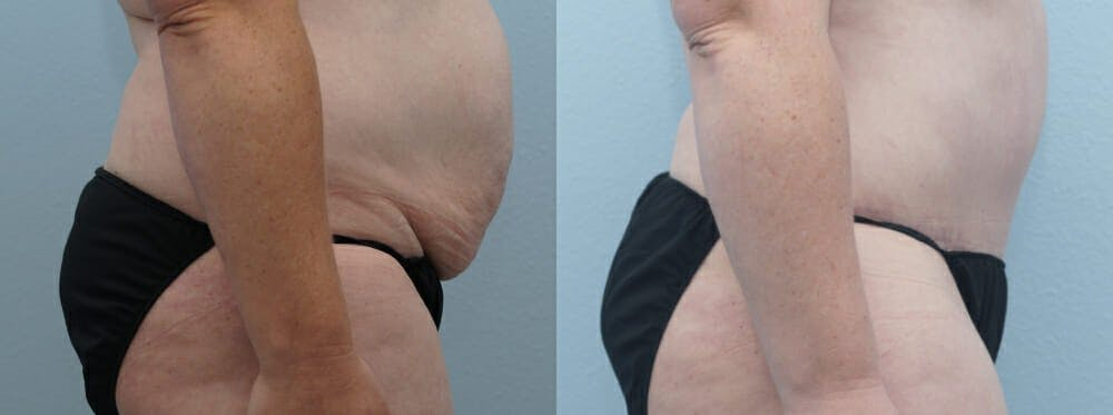 Tummy Tuck Gallery - Patient 49150054 - Image 5