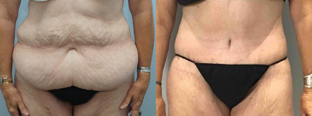 Tummy Tuck Gallery - Patient 49150082 - Image 1