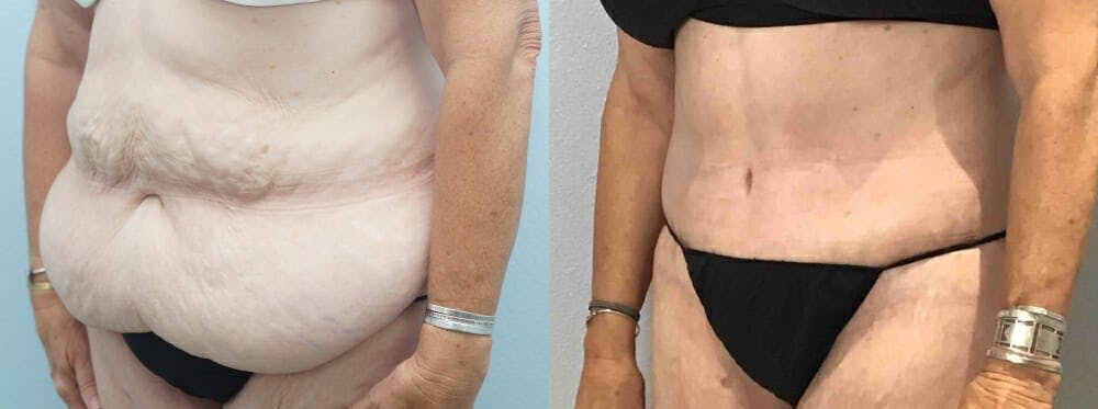 Tummy Tuck Gallery - Patient 49150082 - Image 3
