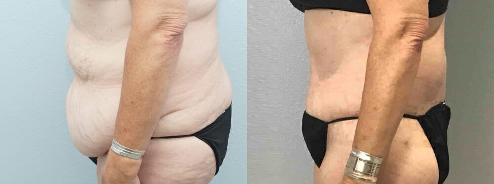 Tummy Tuck Gallery - Patient 49150082 - Image 4