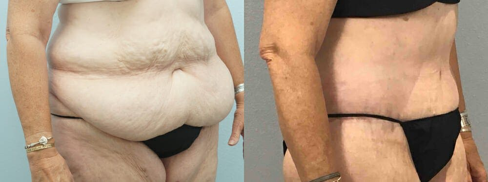 Tummy Tuck Gallery - Patient 49150082 - Image 5