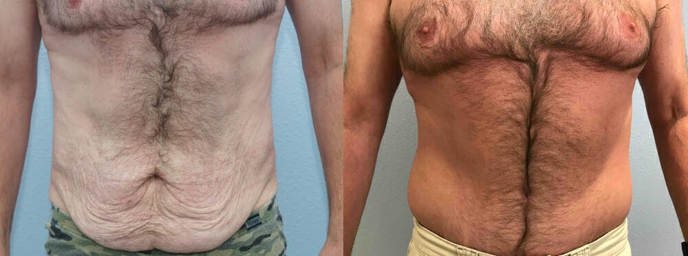 Tummy Tuck Gallery - Patient 49150086 - Image 1