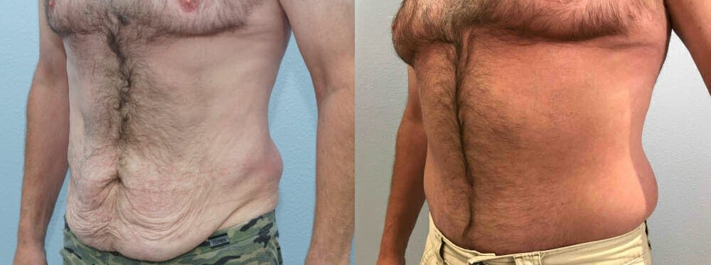 Tummy Tuck Gallery - Patient 49150086 - Image 2