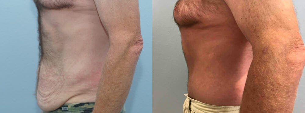 Tummy Tuck Gallery - Patient 49150086 - Image 3
