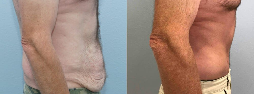 Tummy Tuck Gallery - Patient 49150086 - Image 4