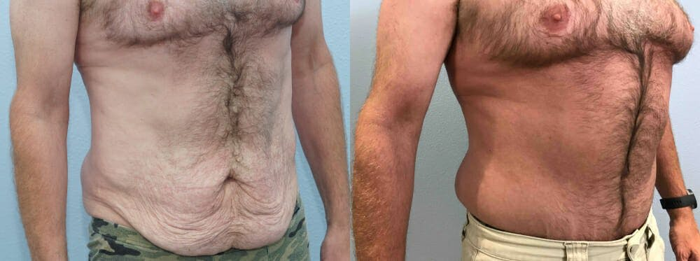 Tummy Tuck Gallery - Patient 49150086 - Image 5