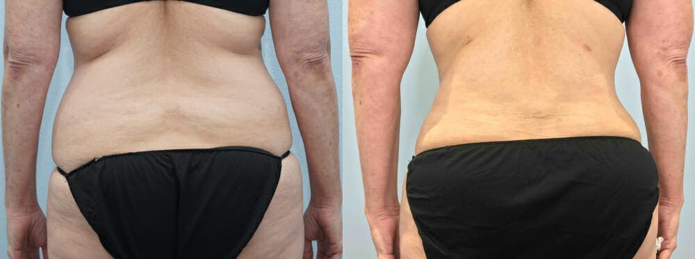 Tummy Tuck Gallery - Patient 49150087 - Image 2