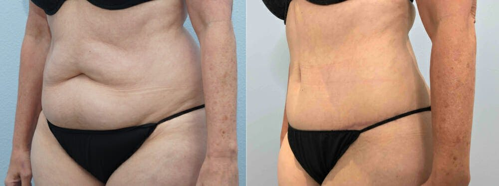 Tummy Tuck Gallery - Patient 49150087 - Image 3