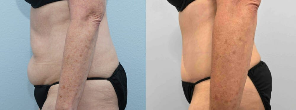 Tummy Tuck Gallery - Patient 49150087 - Image 4