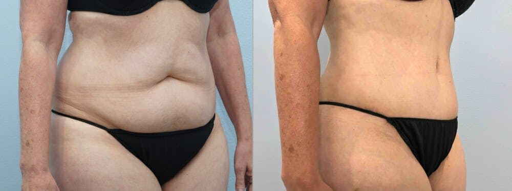 Tummy Tuck Gallery - Patient 49150087 - Image 6