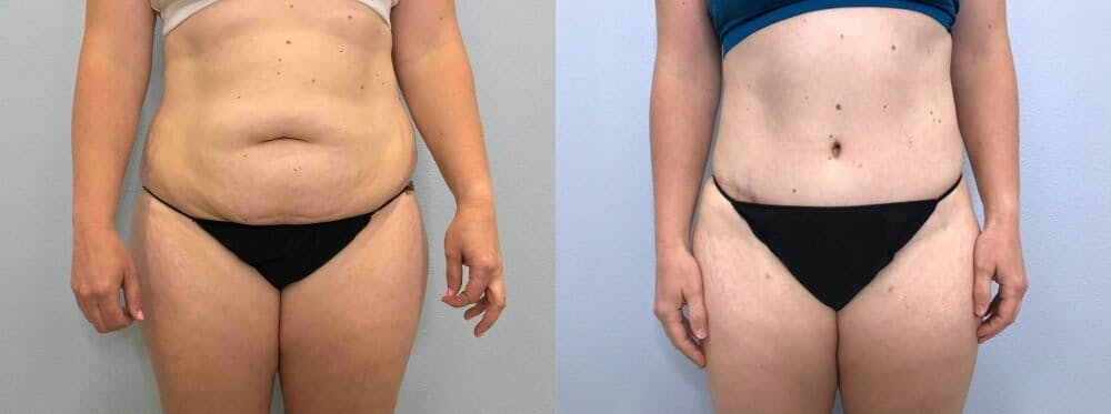 Tummy Tuck Gallery - Patient 49150088 - Image 1