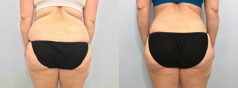 Tummy Tuck Gallery - Patient 49150088 - Image 2