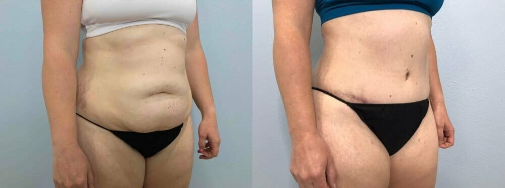 Tummy Tuck Gallery - Patient 49150088 - Image 3