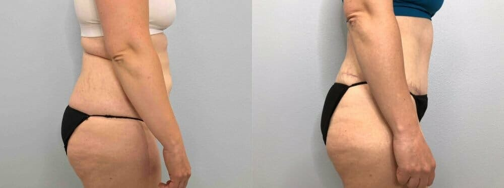 Tummy Tuck Gallery - Patient 49150088 - Image 4