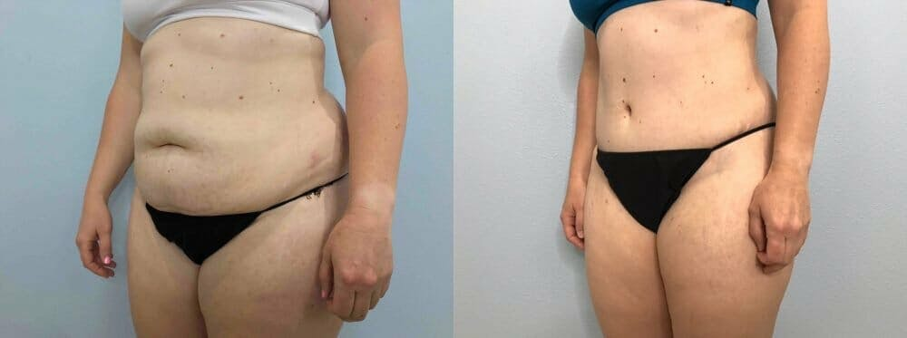 Tummy Tuck Gallery - Patient 49150088 - Image 5