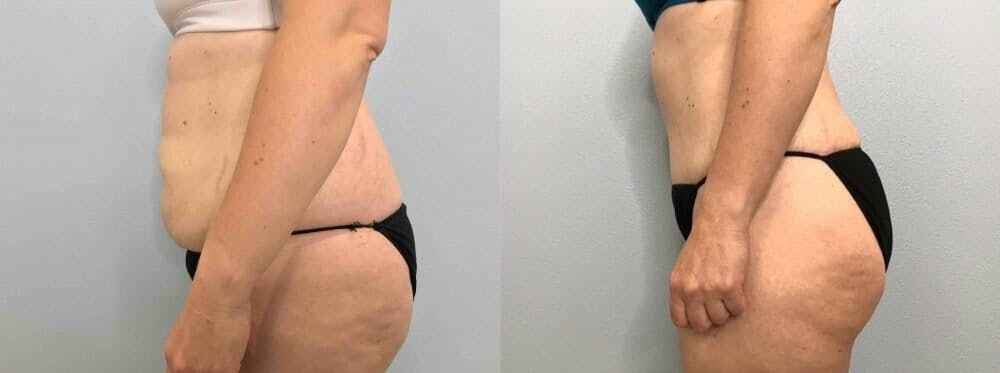Tummy Tuck Gallery - Patient 49150088 - Image 6
